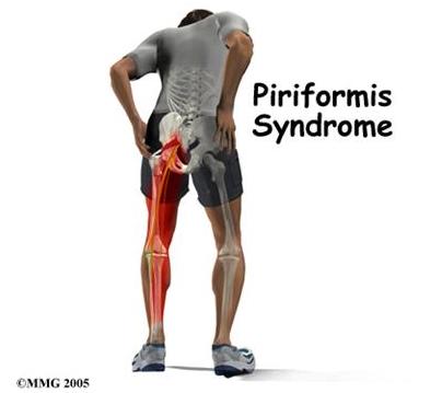 Piriformis as an internal rotator? | Stay Tuned Therapeutics